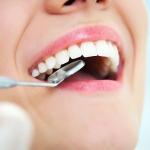 5 solutions maison pour calmer la douleur liée à un abcès dentaire