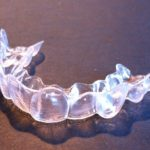 Invisalign Paris : L'orthodontie invisible pour tous !
