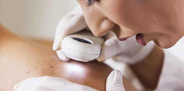 Dermatologie : quels sont les différents types de peaux ?
