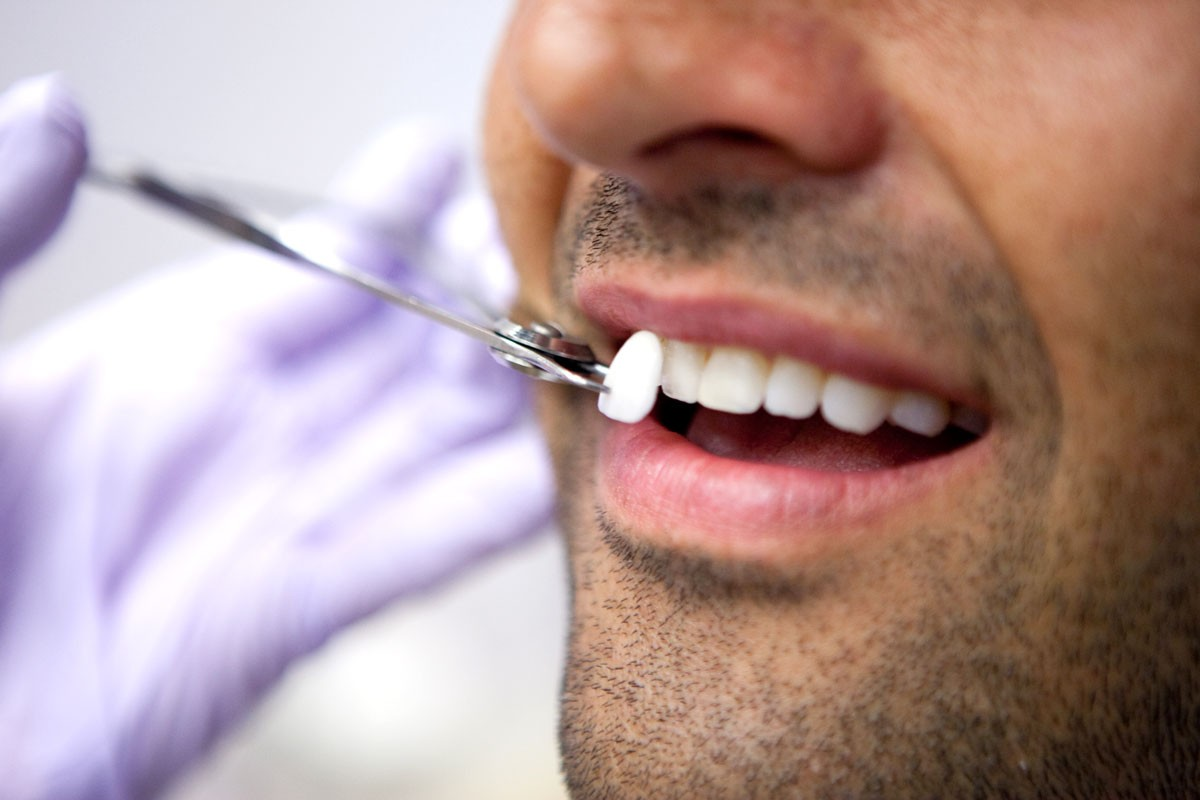 Facettes dentaires : les professionnels vous parlent de cette technique pour avoir un sourire parfait !