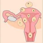 Le cancer des ovaires : une maladie dégénérative bien redoutée