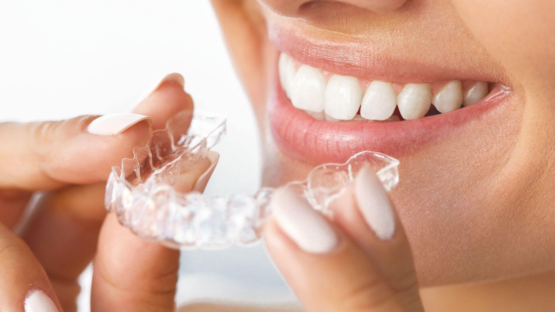 Easysmiles, la startup qui révolutionne l'orthodontie !