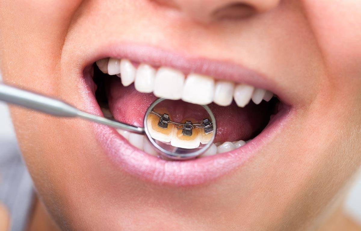 Comment fonctionne un appareil dentaire lingual ?