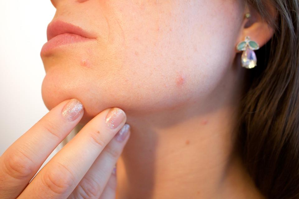 Comment traiter l'acné?