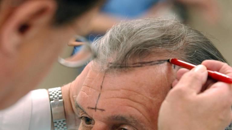 Quelle clinique choisir pour une greffe de cheveux en Turquie ?