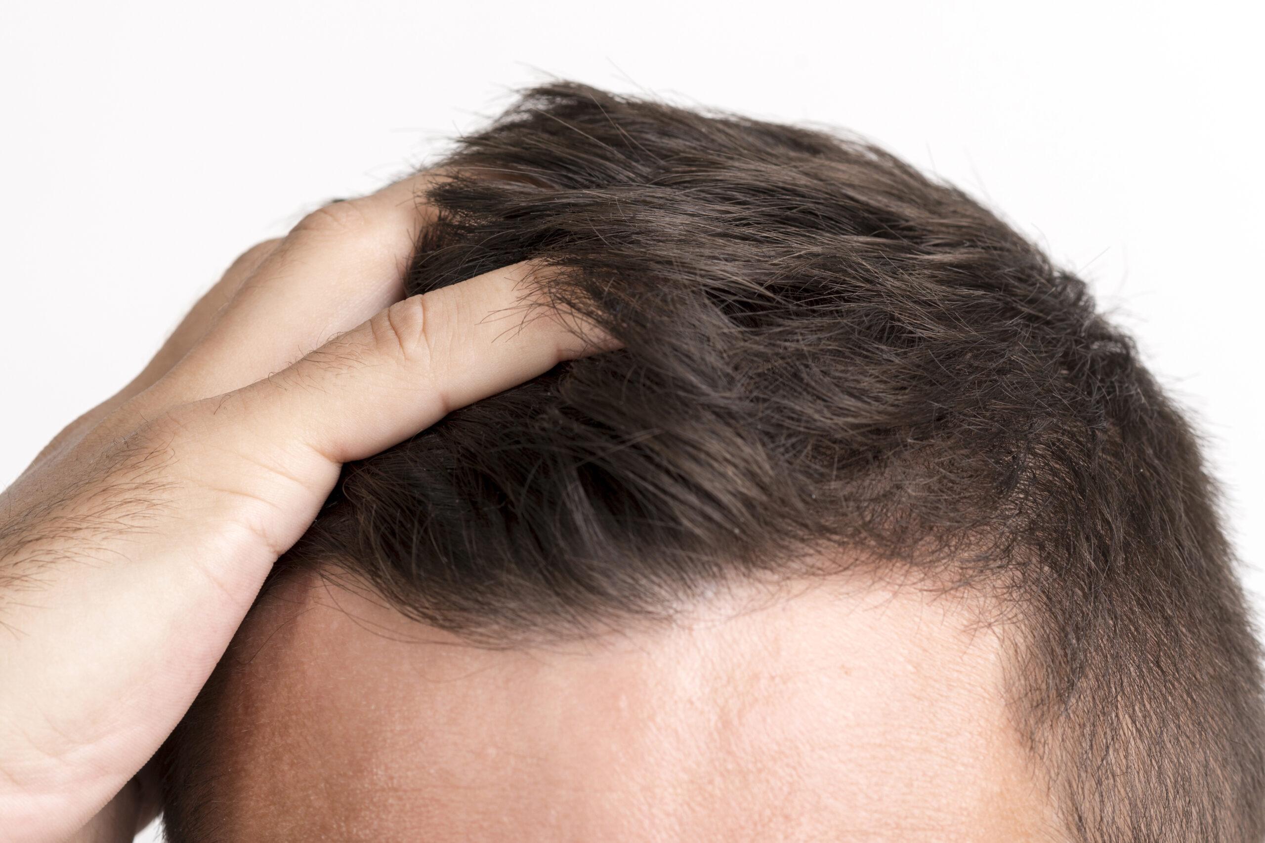 Comment choisir le bon chirurgien pour une greffe de cheveux à Lyon ?
